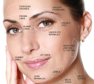 Botox And Your Medical Spa Can Help You Look Great