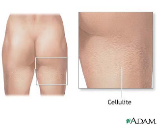 Way To Rid Of Cellulite