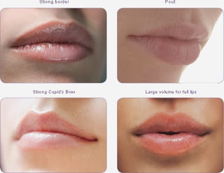 Ideas For Improving Your Face Including Lip Injections Utah Spas Offer